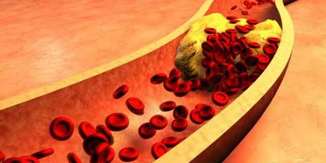 Cholesterol. Value, importance and damages