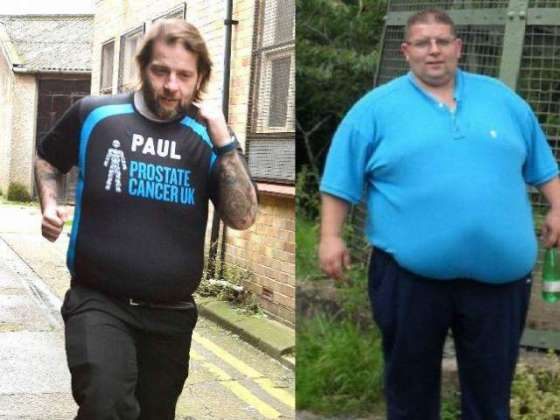 Due to many diseases obesity